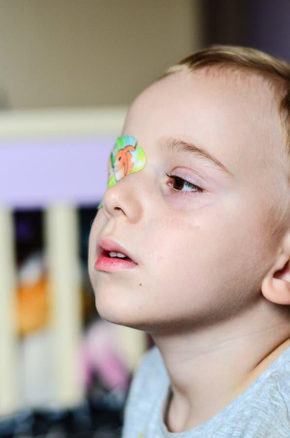 Chłopiec z Eyepatch obrazy royalty free