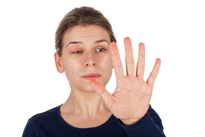 Chalazion - infection de paupière photos libres de droits