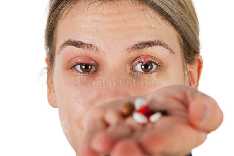 Chalazion - infection de paupière image libre de droits