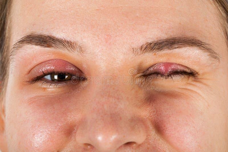 Chalazion - infection de paupière photo libre de droits