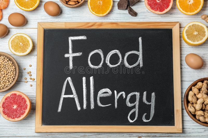 Chalkboard with words FOOD ALLERGY and different products on white wooden table. Flat lay stock photos