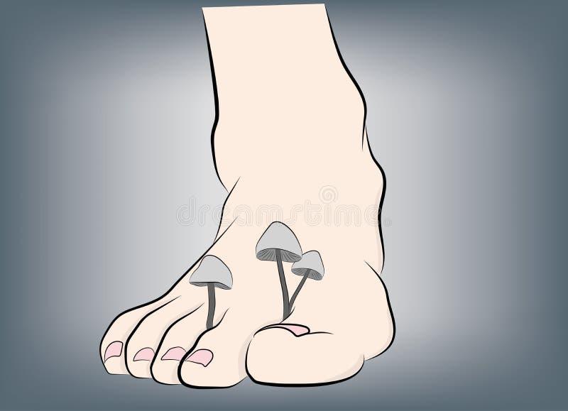 Champignons sur les jambes recommandations médicales Illustration de vecteur illustration libre de droits