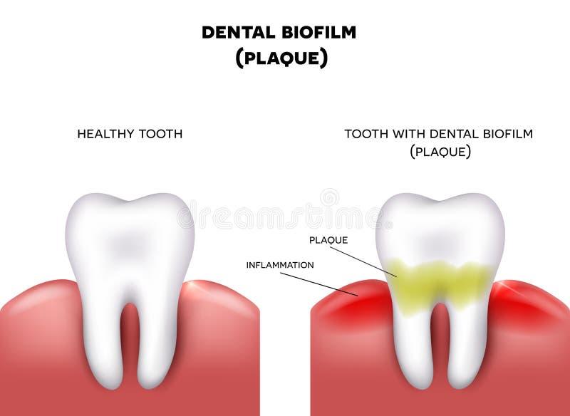 Chapa dental ilustração stock