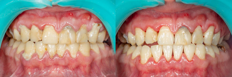 Chapa do paciente, pedra Tratamento da odontologia do plaq dental imagem de stock