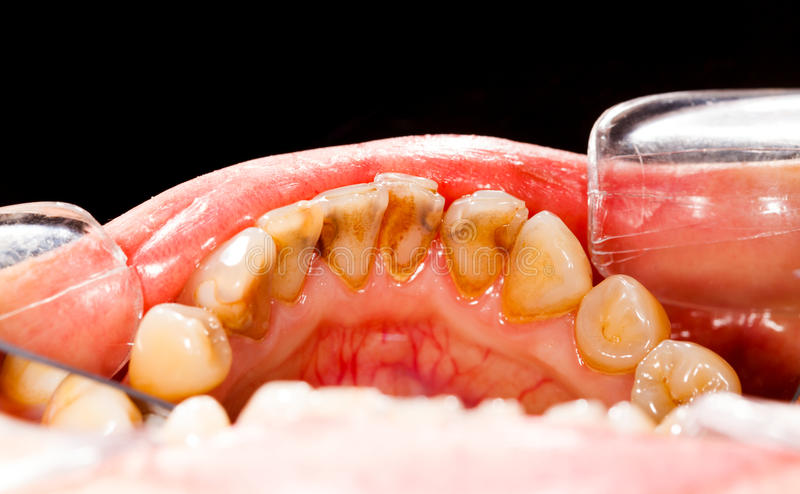 Chapa nos dentes doentes foto de stock