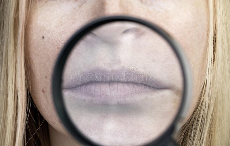 Chapped and dry lips under a magnifying glass. Woman at the doctor's appointment royalty free stock images