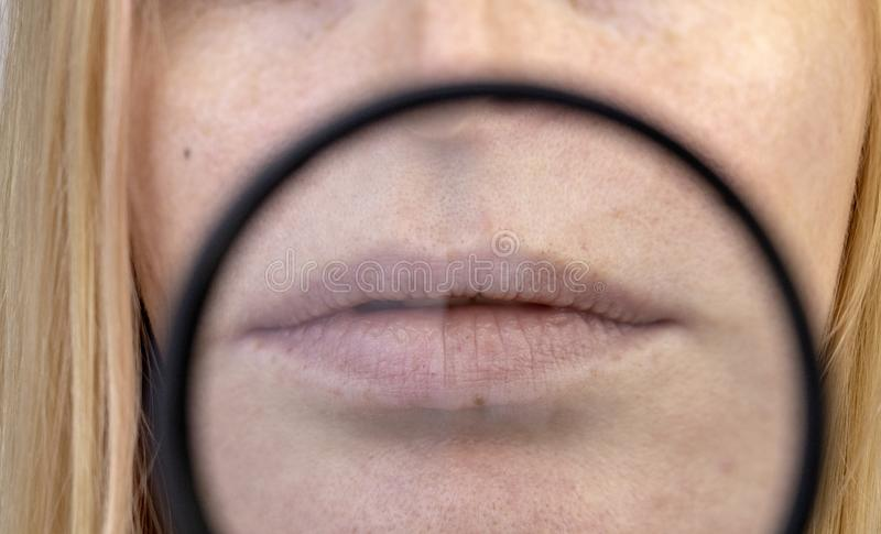 Chapped and dry lips under a magnifying glass. Woman at the doctor's appointment stock photos
