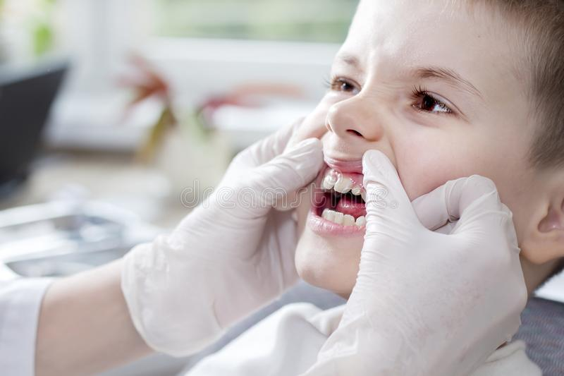 Checking the child`s teeth status. The doctor`s hands in white gloves move the gums and reveal the boy`s white teeth. royalty free stock photo