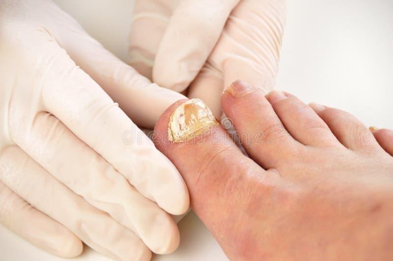 Checking the disease big toe royalty free stock image