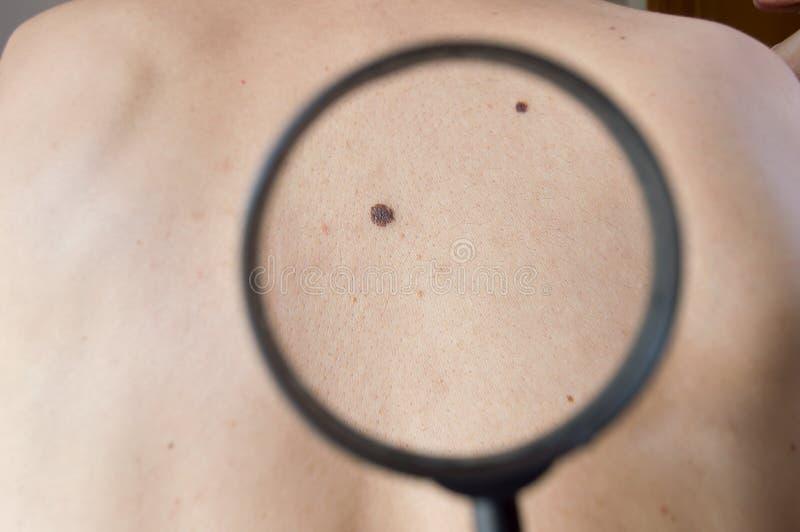 Checking melanoma on back of man stock photos