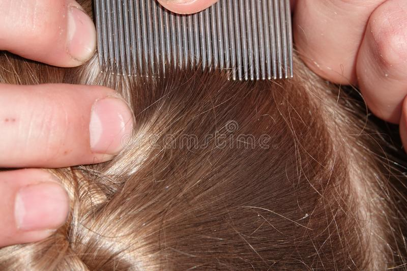 Checking a young girls hair for head lice. Head lice infection common in young people. Hair being checked using a special head lice comb stock image