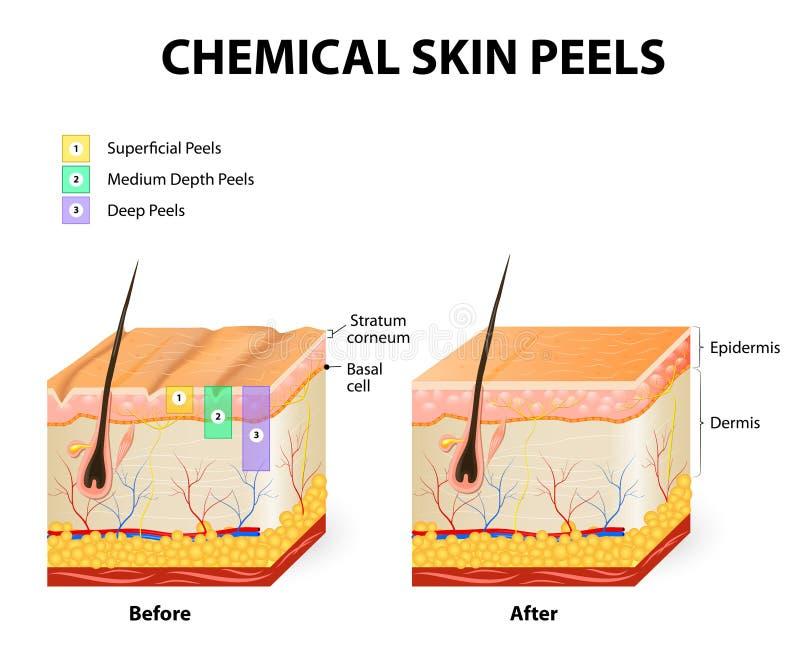 Chemical peels. Chemical peeling or procedure chemexfoliation. Human skin layers