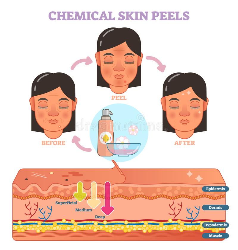 Chemical skin peels vector illustration diagram. With 3 steps and skin layer scheme stock illustration