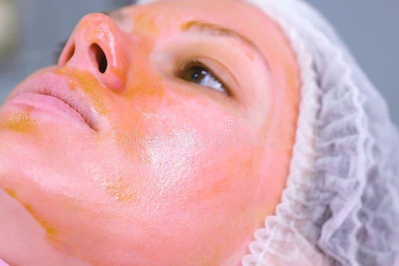 Chemisch, O abziehend das Gesicht der Frau Säubern der Gesichtshaut und Erleichtern der Sommersprossehaut Rosafarbene Lippen Weic lizenzfreie stockbilder