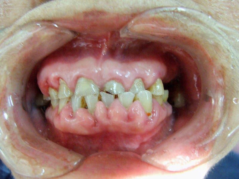 Chequeo decaído de los dientes fotografía de archivo