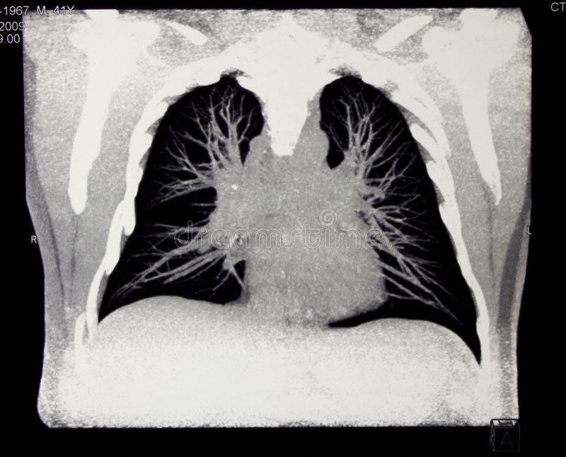 Chest, computed tomography royalty free stock images
