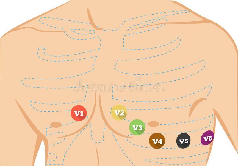 Chest ecg leads placement illustration. Six colored electrocardiography leads. Illustration of recording of limb leads electrocardiogram stock illustration