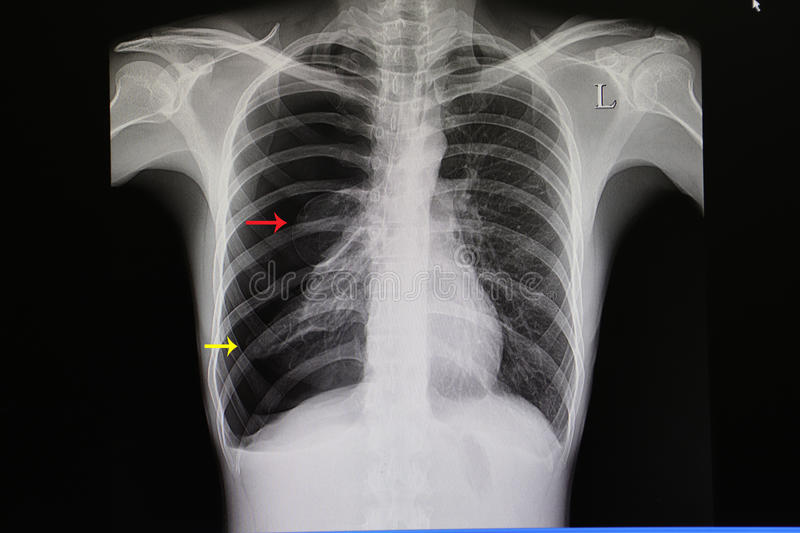 chest film of a patient with large pneumothorax royalty free stock images