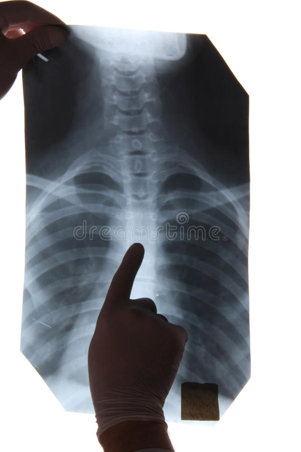 Download Chest x-ray stock photo. Image of checkup, bronchus, hospital - 17692492