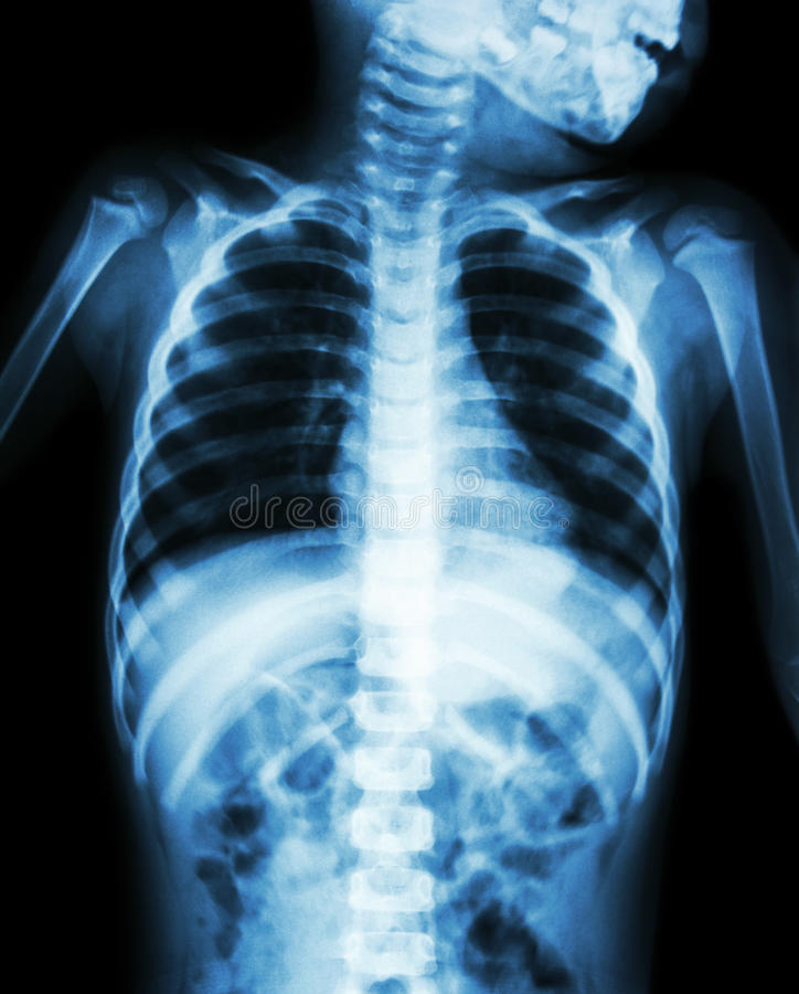 Chest X-ray of child show neck , thorax , shoulder , arm , abdomen stock image