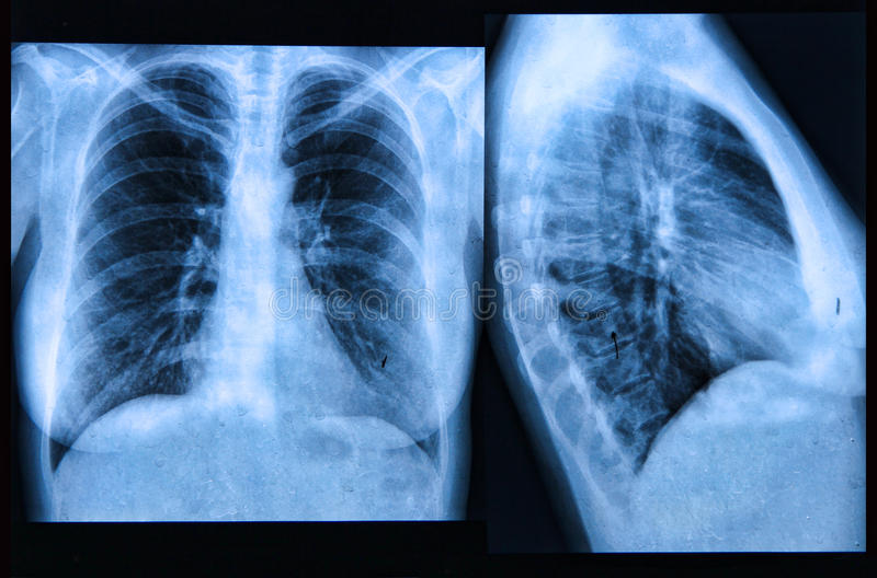 Download Chest X-ray Image stock image. Image of disease, heart - 30981313