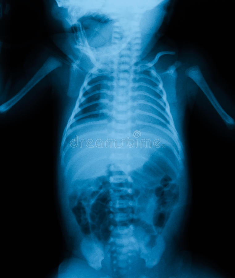 Chest X-ray include abdomen. Chest X-ray include abdomen in a child royalty free stock photography