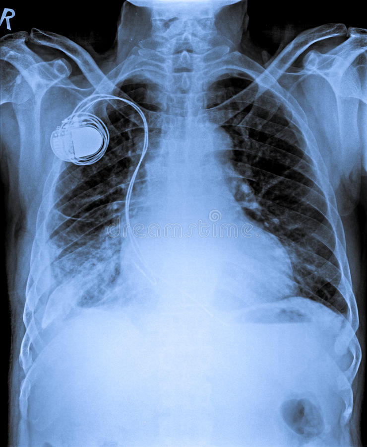 Chest X Ray with Pacemaker. Chest X Ray of patient with Pacemaker royalty free stock images