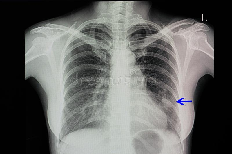 chest x-ray of a patient with pneumonia stock photography