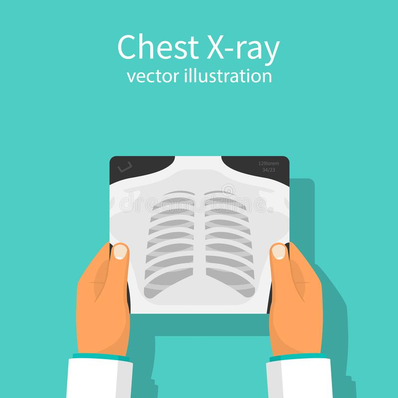 Chest X-ray vector royalty free illustration