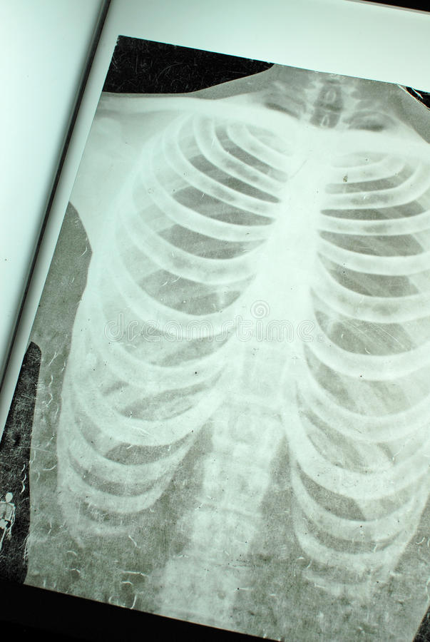 Download Chest X-Ray stock photo. Image of injury, body, broken - 21177082