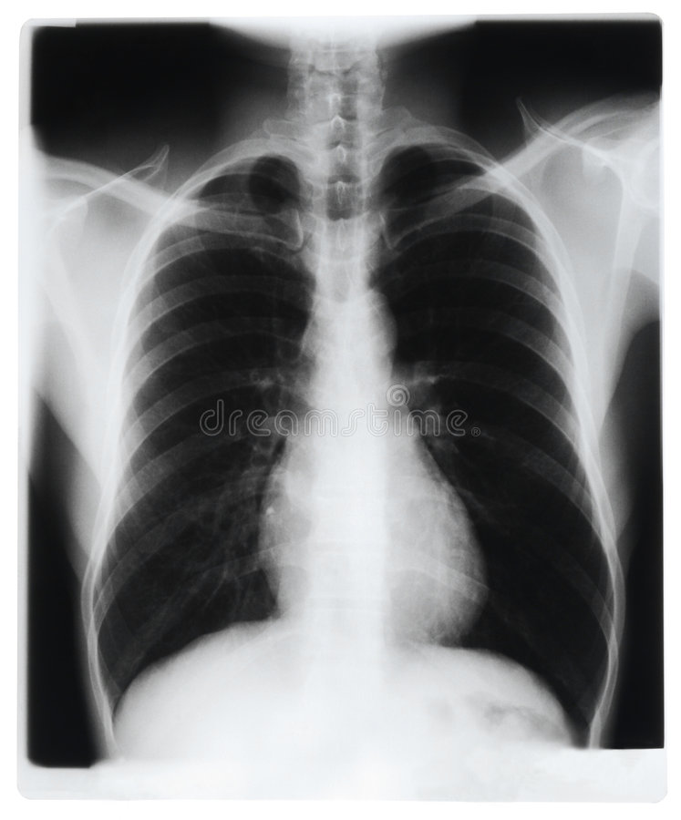 Free Chest X-ray Stock Photography - 8701432
