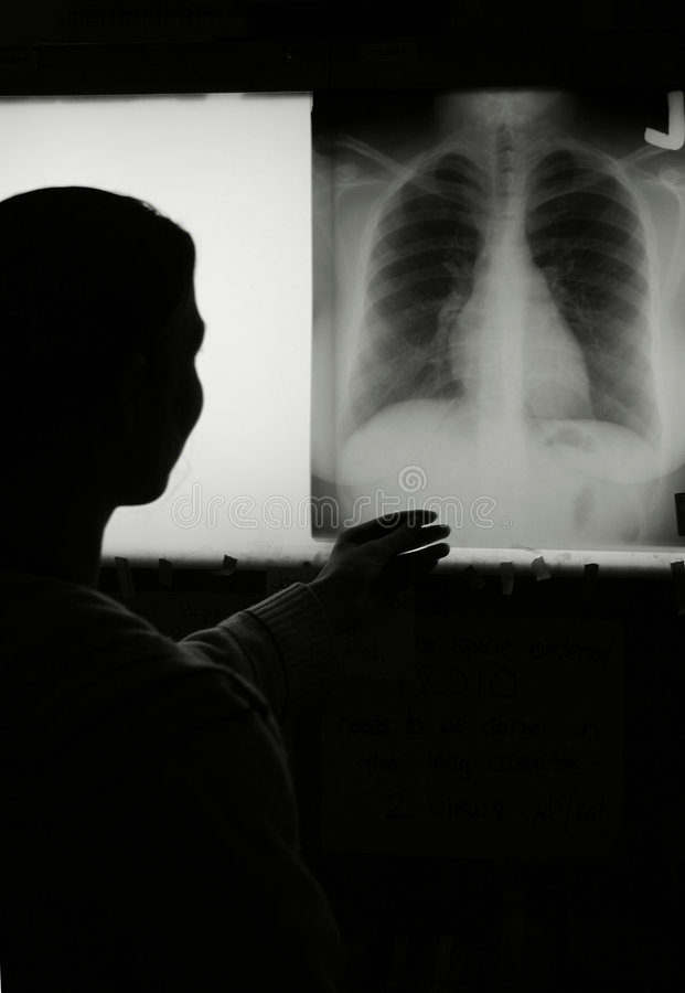Chest Xray royalty free stock images