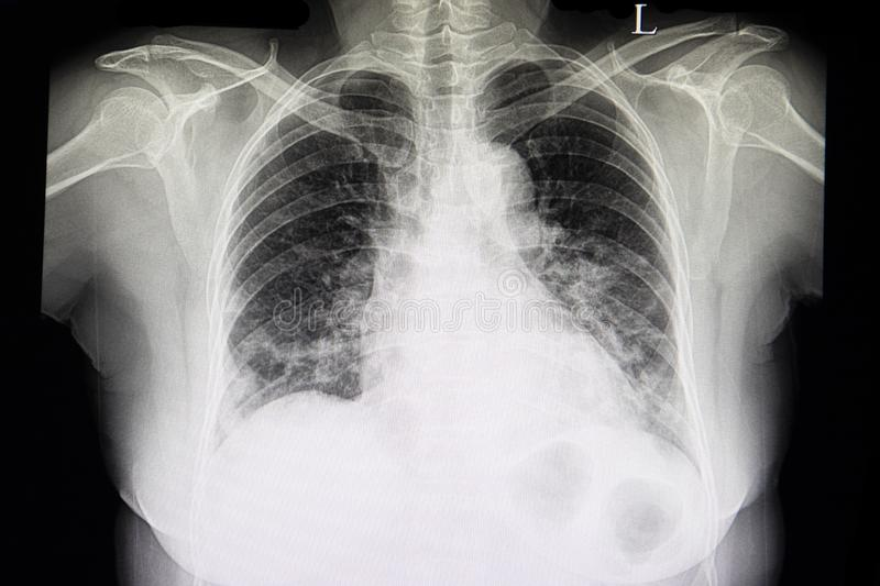 A chest xray film of patient with heart failure stock photography