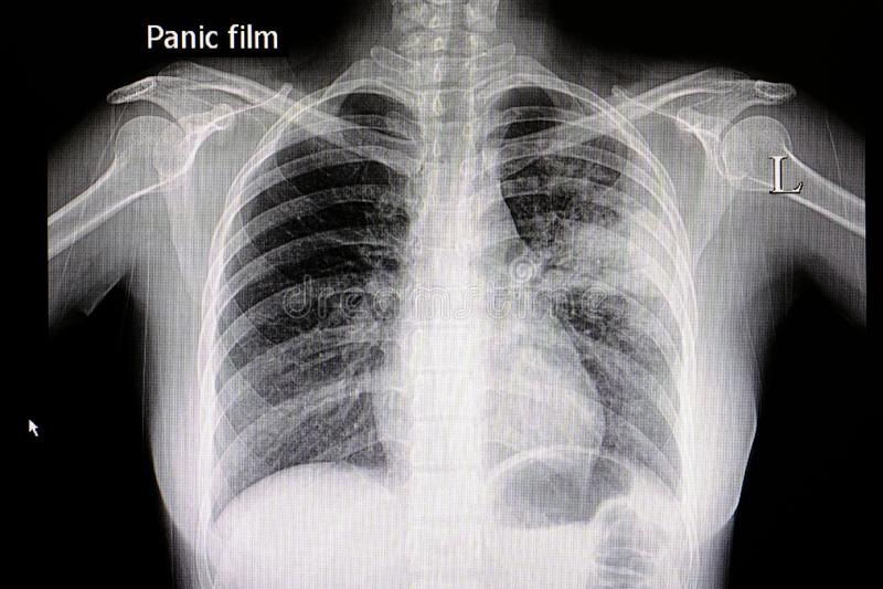 Xpneumonia chest film royalty free stock photo