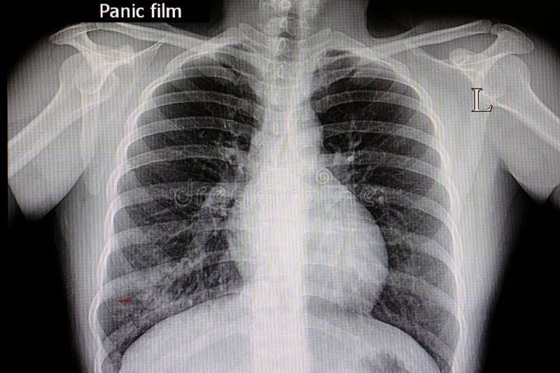 pneumonia chest film stock photo