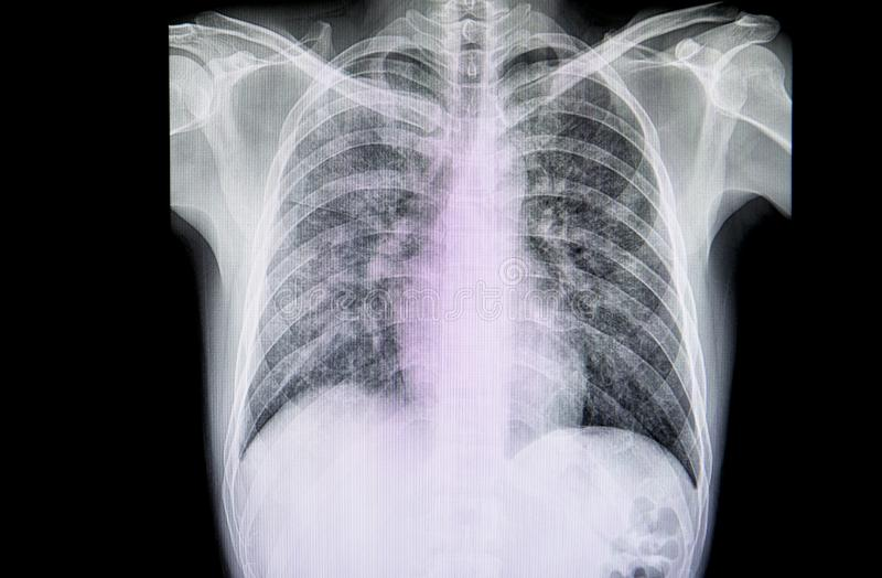 A chest xray film of a patient with  severe pneumonia royalty free stock photos