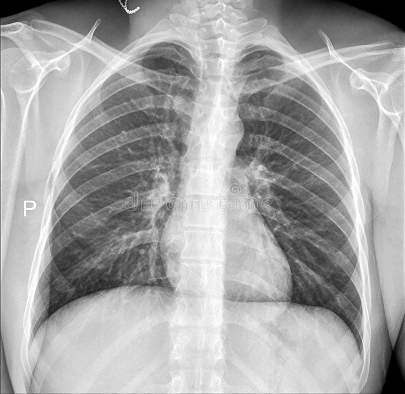 chest xray heart lungs bones and rib cage stock photo