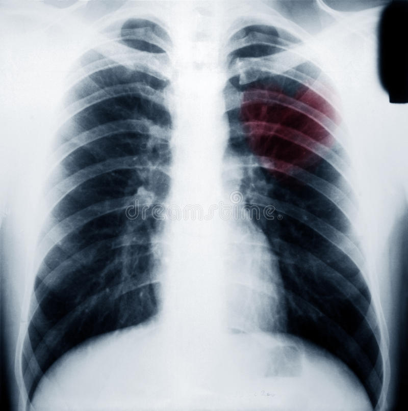 Chest xray scan royalty free stock image