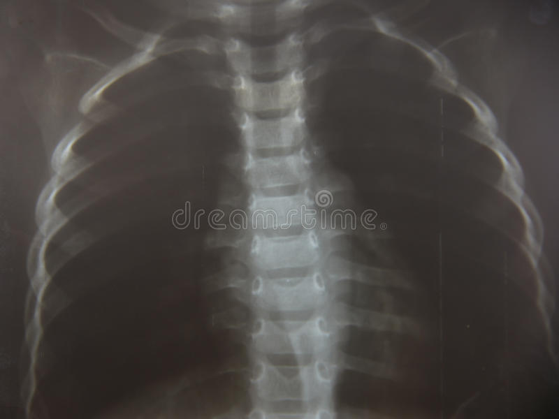 Chet-Kinderröntgenstrahl lizenzfreie stockfotografie