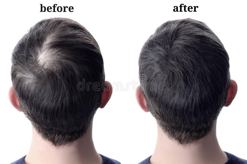 Cheveux d'hommes après utilisation de l'épaississement cosmétique de cheveux de poudre Avant et après photos libres de droits