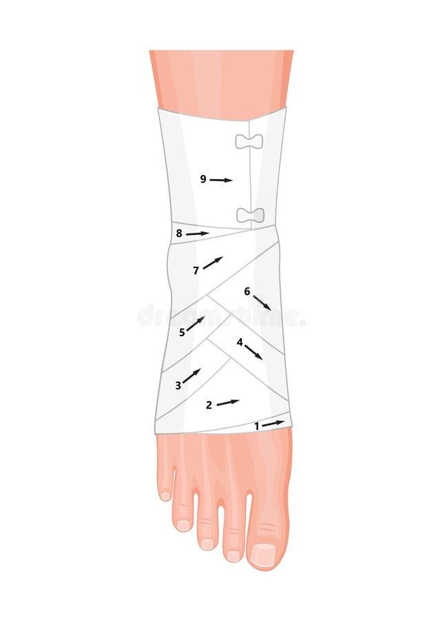 Cheville de bandage illustration libre de droits