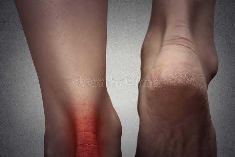 Cheville douloureuse avec la tache rouge sur le pied de la femme photographie stock