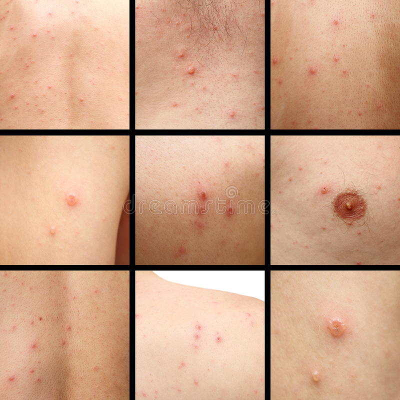 Chicken pox on human skin royalty free stock images