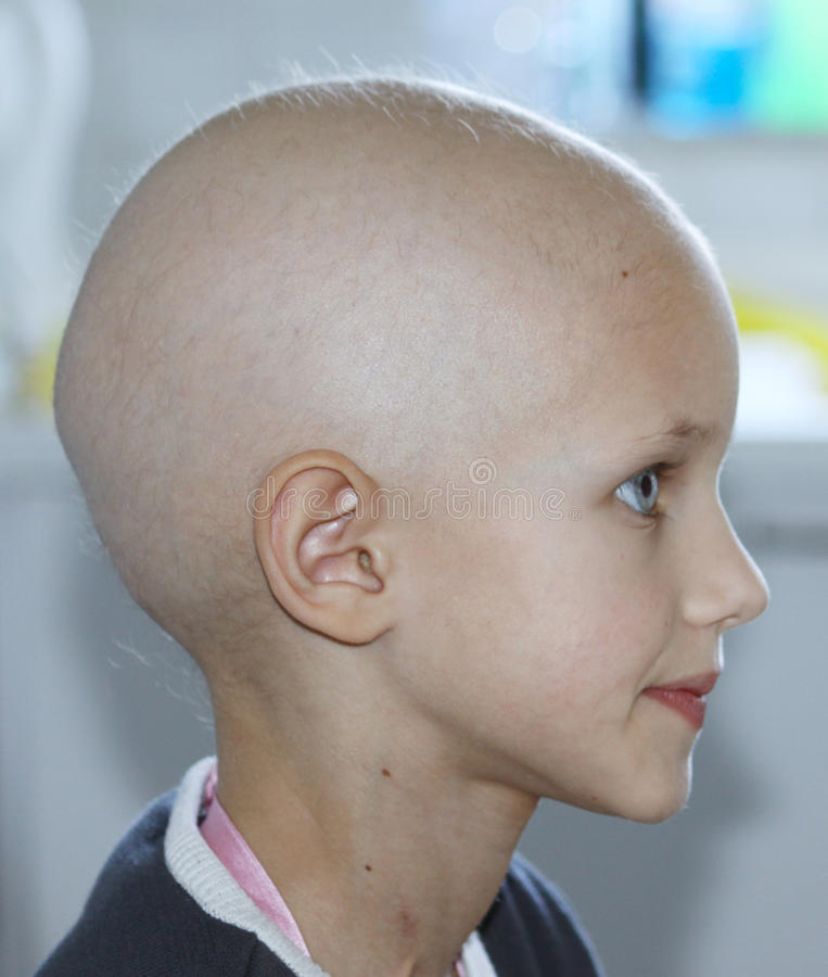 Download Child with cancer stock photo. Image of cancer, bald - 19381262
