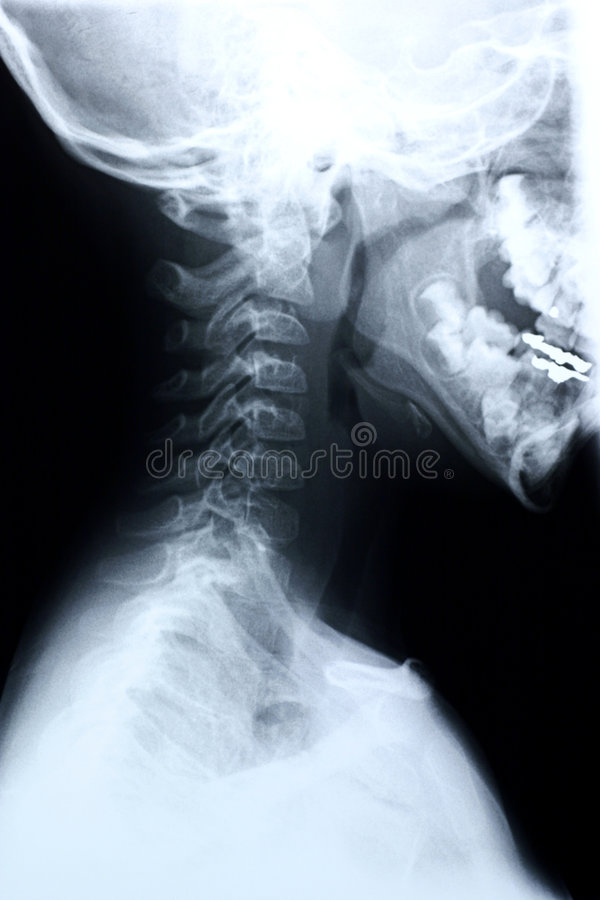 Download Child Cervical Spine/side View Stock Image - Image of cage, fracture: 198777
