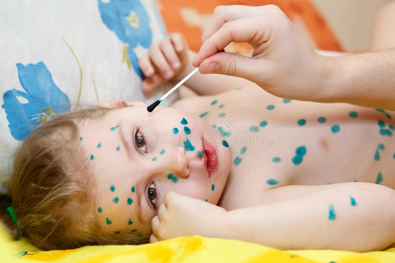 Download Child with chickenpox stock image. Image of daub, laying - 24385189