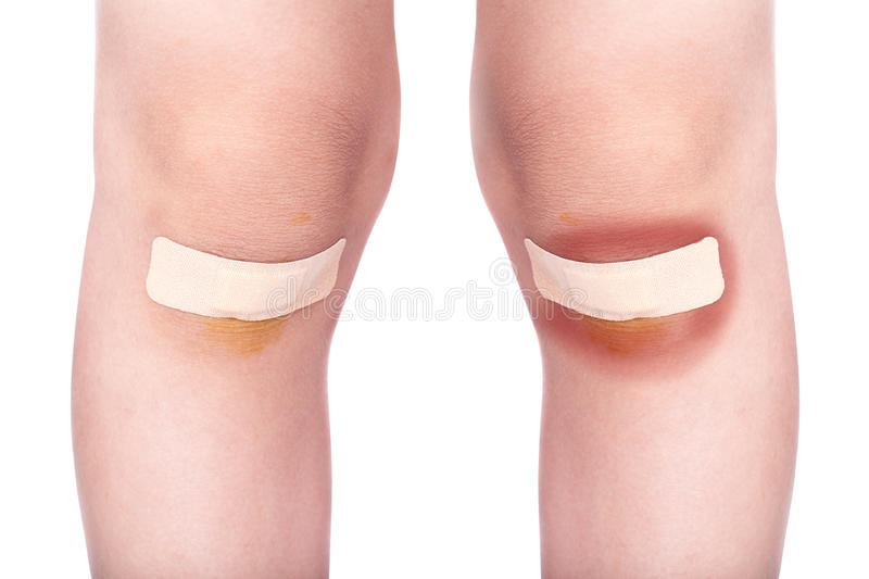 Child knees with a plaster (for wounds) and bruise. Isolated on white background stock photo