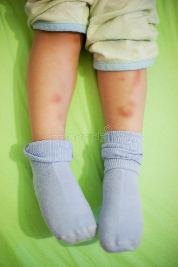 Child Legs With Bruises Stock Photos