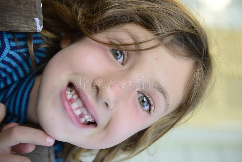 Child with missing teeth smiling stock image