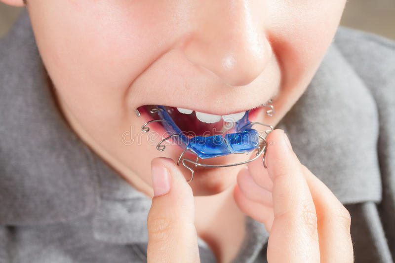 Child with orthodontic appliance. Boy holds an orthodontic appliance in his hand royalty free stock photos